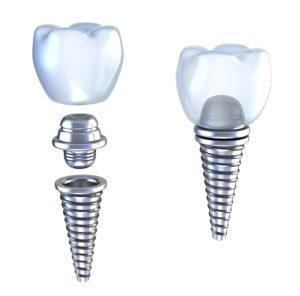 Fogaszati implantátum