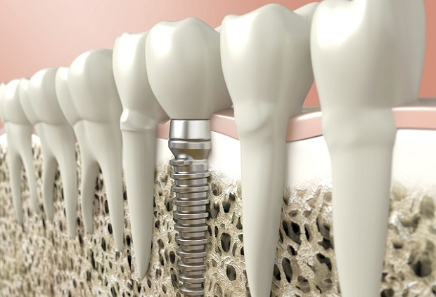 implantatum 9 ok, hogy miért előnyös a fogászati implantátum
