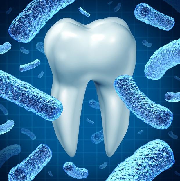fogak_bakterium Dentálhigiénia, a professzionális fogtisztítás - Interjú Zsiga Mónikával