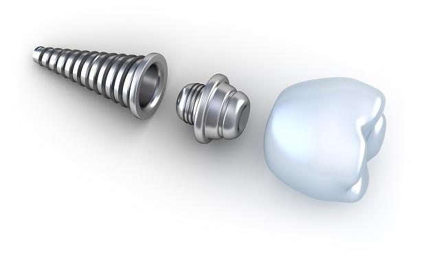 fogaszati-implnatatum Implantátum kezelés lépésről-lépésre