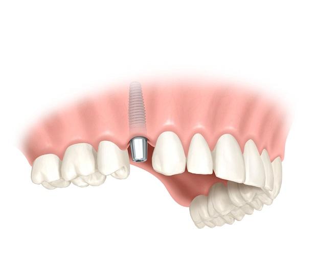 implantacio1 Implantátum kezelés lépésről-lépésre