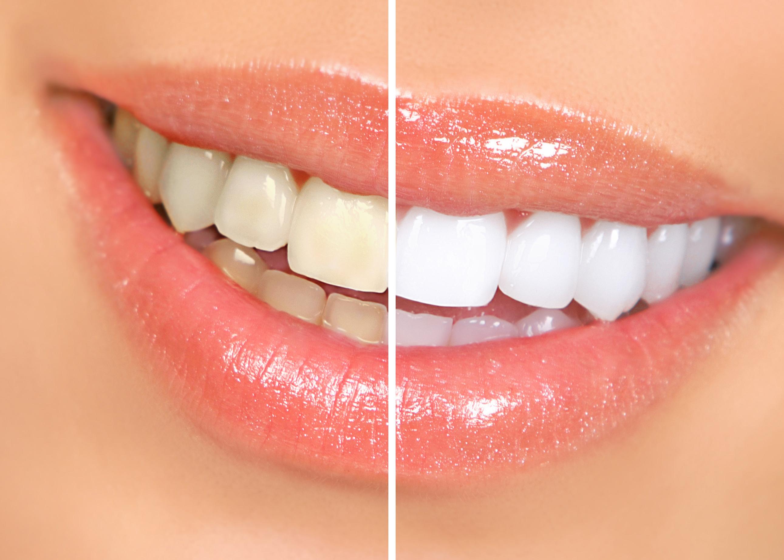 bigstock-Woman-Teeth-8034340 Fogfehérítés: szemfényvesztés vagy hatékony kozmetikai kezelés?