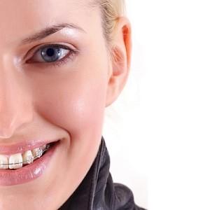 """Fogszab2_fel-lany-300x300 A fogszabályozás menete: minden, amit tudni érdemes a fogak """"rendezéséről"""""""