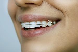 """fix-fogszabalyozo_mosoly A fogszabályozás menete: minden, amit tudni érdemes a fogak """"rendezéséről"""""""