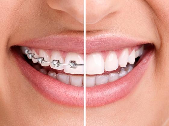 shutterstock_1551313911 Fogszabályzás – az őszinte mosolyért
