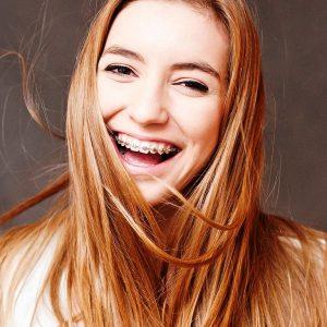 fem-fogszabalyozo-300x300 Felnőtt fogszabályozás - Elég a kifogásokból, soha nem késő elkezdeni!